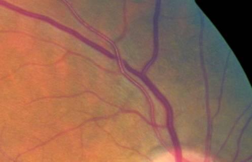 Retinal Images Bars